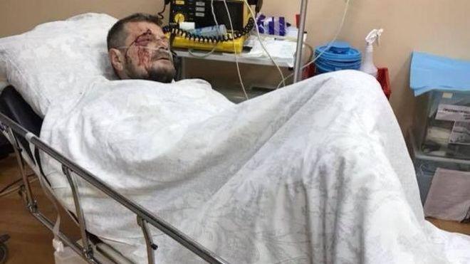 Мосийчук пришел в себя после операции и сделал заявление