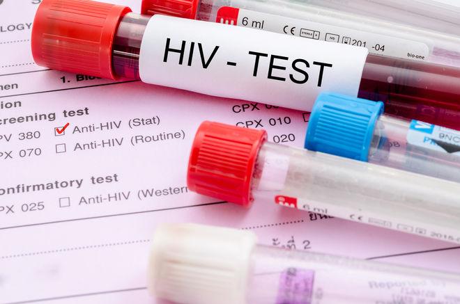 В Украине запустили онлайн-тест на ВИЧ