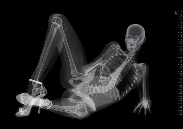 Японцы издали эротический календарь в виде рентгеновских снимков